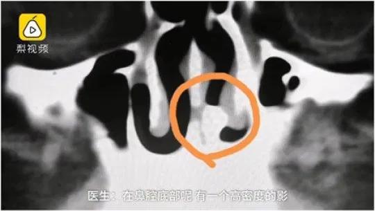 Radiografia dente nella narice